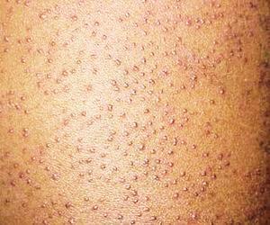 科学认识毛囊角化症是怎么一回事_上海宏康皮